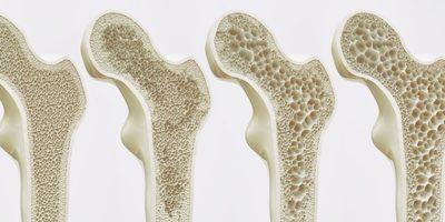 Osteoporosis Y Fisioterapia