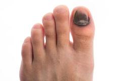 http://www.dreamstime.com/stock-photos-injure-toenail-image25985993