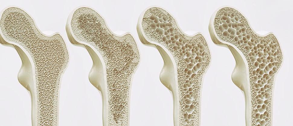 La Osteoporosis.