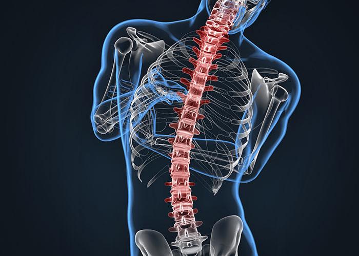 Escoliosis, Síntomas, Tratamientos Y Cómo Mejorar